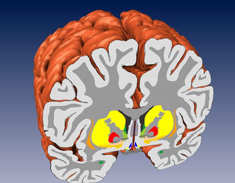 The Human Brain · Atlas of the Human Brain · 3D views · 3D