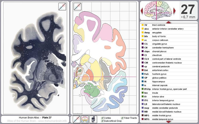 The Human Brain Atlas Of The Human Brain Sections Virtual