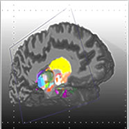 Interactive 3D and Navigation in the Human Brain