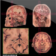 The Head-Navigator shows 3 series of 1cm thick anatomical slices cut in the 3 cardinal planes: Slices from the horizontal and sagittal series are represented in the Atlas